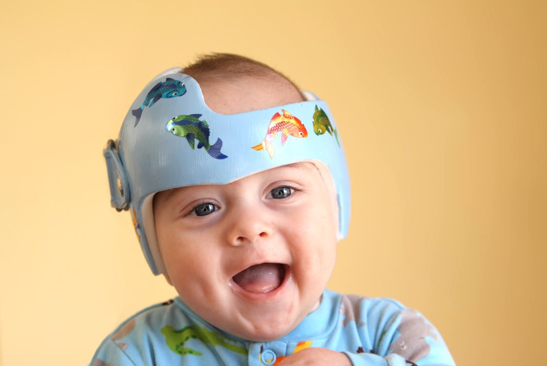 Craniofacial Center Positional Plagiocephaly Program- image of baby