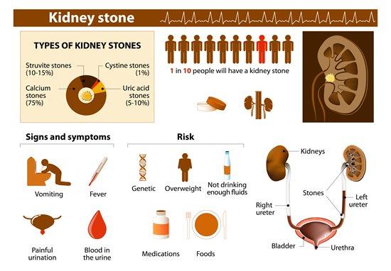 can kids get kidney stones