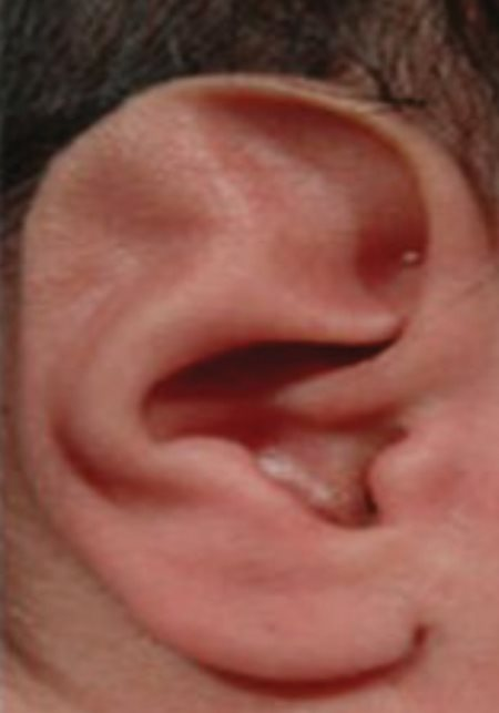 Ear-Deformities_Absent-Rim