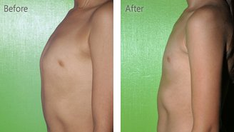 Before and after pectus carinatum chest bracing treatmet