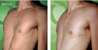 Teenage patient with pectus excavatum after surgery