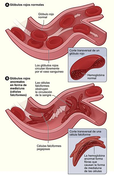 Normal Red Blood Cells and Sickle Cells - Spanish
