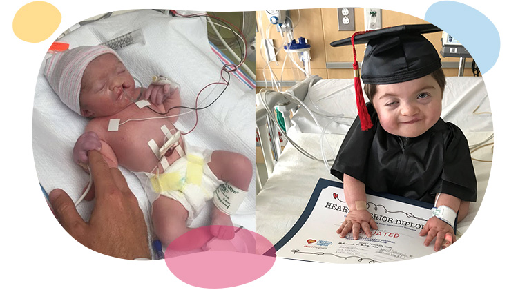 baby tad right after surgery and after graduating from intensive care