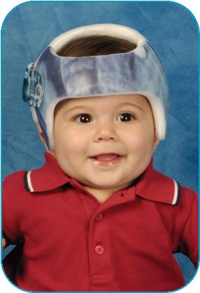 Cranial Remodeling Treatment,Your child has been referred for cranial remodeling treatment and will be fitted with a STARband™ cranial remodeling orthosis.- Image of baby boy wearing helmet