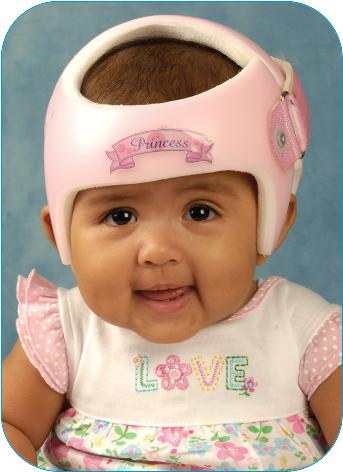 Cranial Remodeling Treatment,Your child has been referred for cranial remodeling treatment and will be fitted with a STARband™ cranial remodeling orthosis.- Image of baby girl wearing helmet